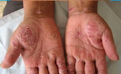 银屑病具体有哪些危害