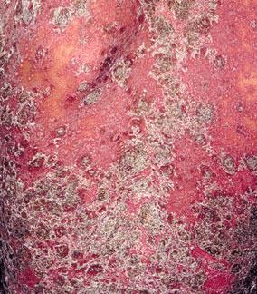 牛皮癣能传染吗