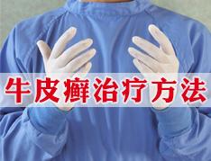 郑州牛皮癣治疗哪家好?