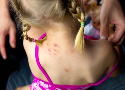 儿童牛皮癣的特点 儿童牛皮癣有何病症表现